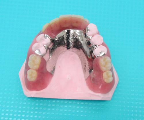 AIデンチャー小臼歯部残存