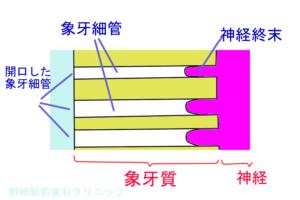 象牙質・象牙細管の拡大図