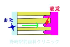 知覚過敏・動水力学説イメージ図
