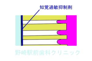 知覚過敏抑制剤・表面コーティングタイプ