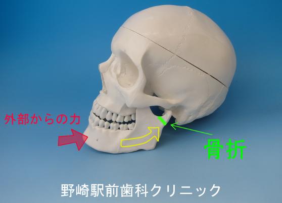 下顎頭の骨折