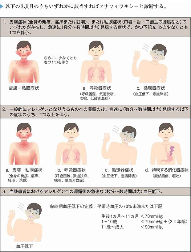 アナフィラキシーの診断基準