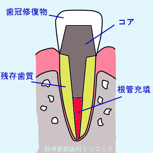失活歯の歯冠補綴物
