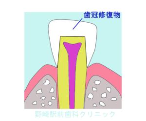 生活歯の歯冠修復物