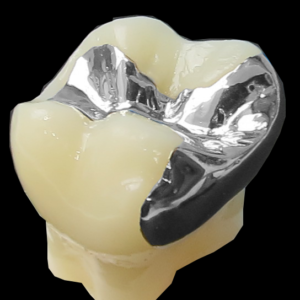 保険の銀歯