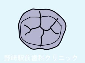 臼歯の構造