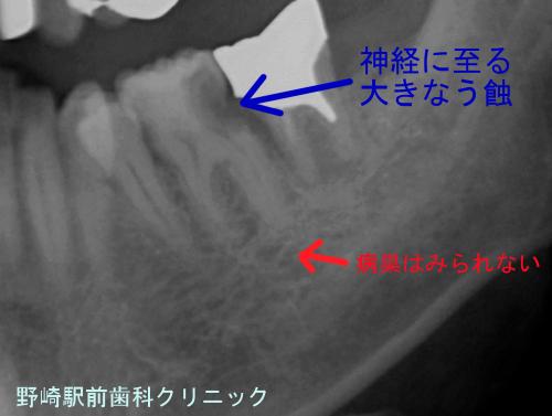 麻酔抜髄適用歯