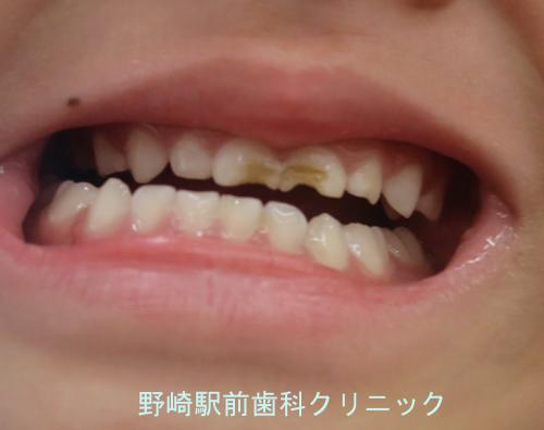 乳歯のエナメル質減形成