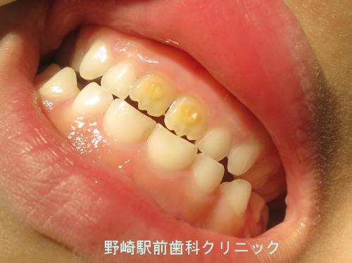 永久歯のエナメル質減形成
