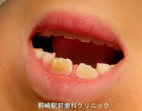 MIH前歯部