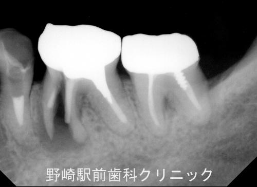 左下大臼歯部デンタル像