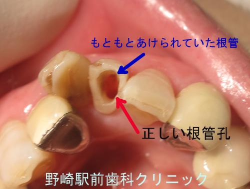 根管孔の写真