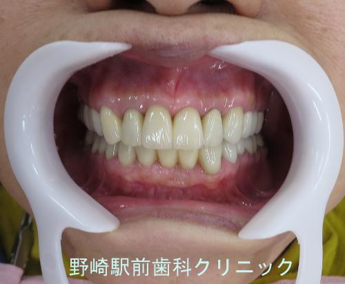 セラミック周囲の歯肉