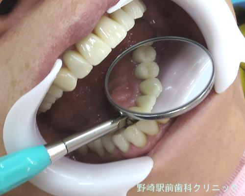 セラミックの歯肉状態舌側