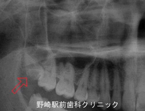 上顎の難抜歯症例