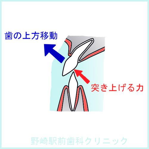 前歯の傾斜移動