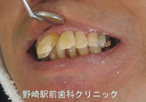 前歯部の上方傾斜