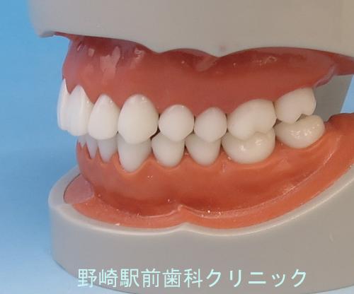 前歯部の位置関係