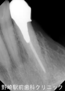 犬歯デンタル