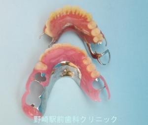 保険義歯との比較