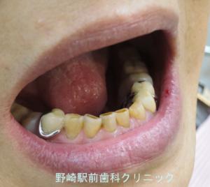 保険義歯側面観