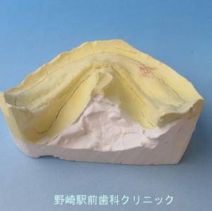 保険義歯模型