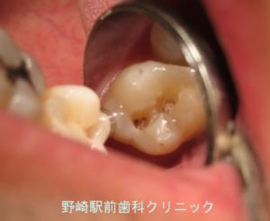 象牙質で広がっていた虫歯