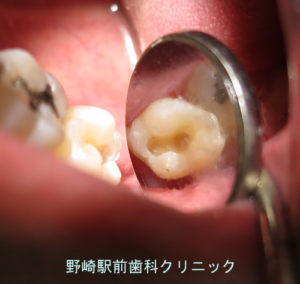 虫歯を取りきった