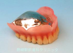金属総義歯