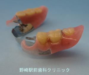増歯した義歯