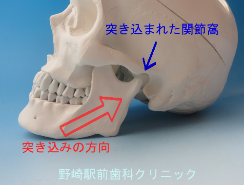 牽引時の顎関節